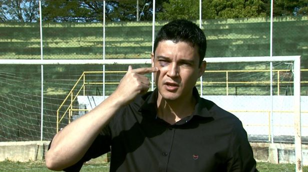 Referee-Camilo-Eustquio-shows-the-black-eye-given-by-the-footballer-in-the-amateur-game-on-Sunday-